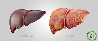 HOW TO KEEP A HEALTHY LIVER 1