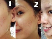 Cara Mempercepat Proses Purging Pada Wajah