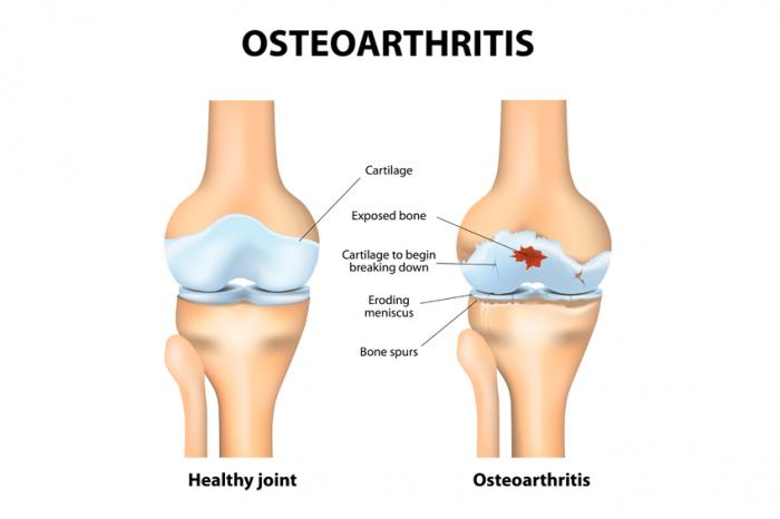Lutut sakit tanda penyakit apa