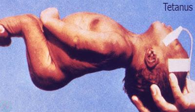 tetanus disease, ধনুষ্টংকার রোগ