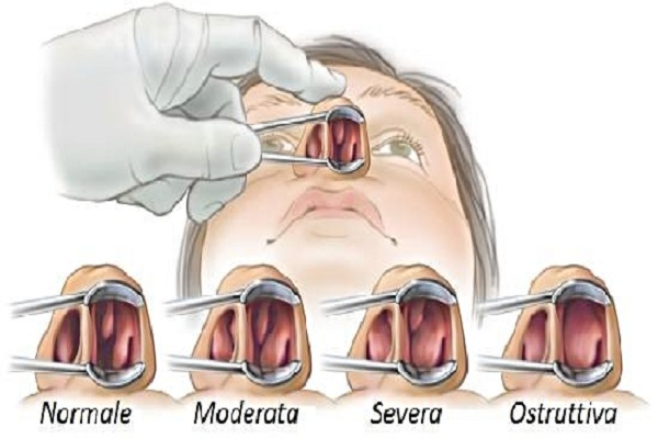 my nasal passages are swollen - 600×400