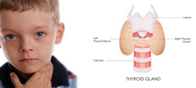 thyroid symptom in child