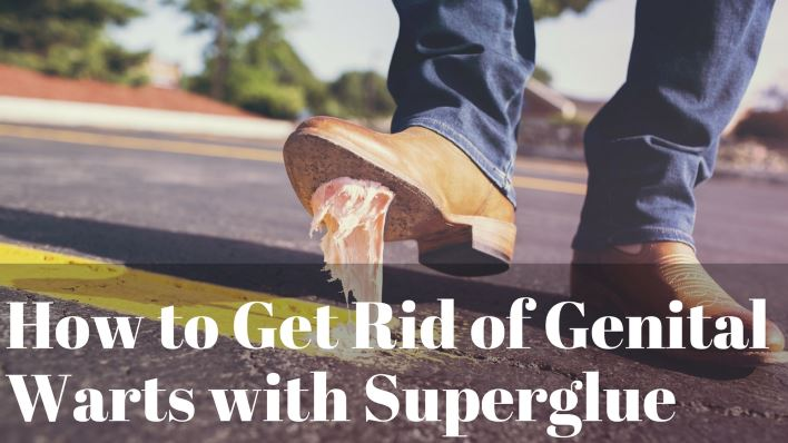 How to Get Rid of Genital Warts with Superglue