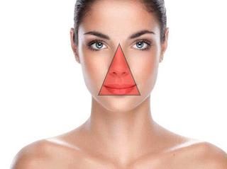 Cara menghilangkan jerawat hitam di muka