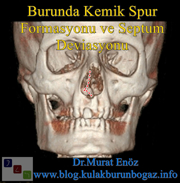 What Is a Nasal Bone Spur? - Nasal Bone Spurs Surgery İstanbul - Nasal Bone Spur Treatment in Turkey - Symptoms of Nasal Bone Spur - Nose Bone Spur Formation - Contact Point Headaches - Diagnosis of Nasal Bone Spur - Removal of a Septal Bone Spur - Atypical Headache - Osteophyte - Bone Spur of Nose - Nasal Bone Spur - Bony Nasal Septal Spur
