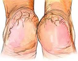 best remedy for cracked heels in urdu