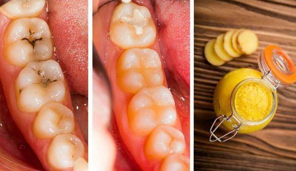 Buat Kamu yang Giginya Berlubang dan Sering Sakit Gigi Inilah Cara Mencegah Dan Mengatasi Sakit Gigi Berlubang Dengan Kunyit