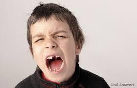 Retenção dos dentes - Falta de mastigação causa problemas nas crianças