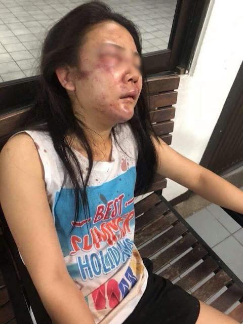 Babak Belur! Wanita Cantik Ini Dipukuli Kekasihnya, Aslinya Lucu