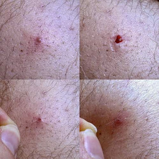 image of ingrown hair