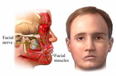 obat penyakit stroke ringan alami paling manjur