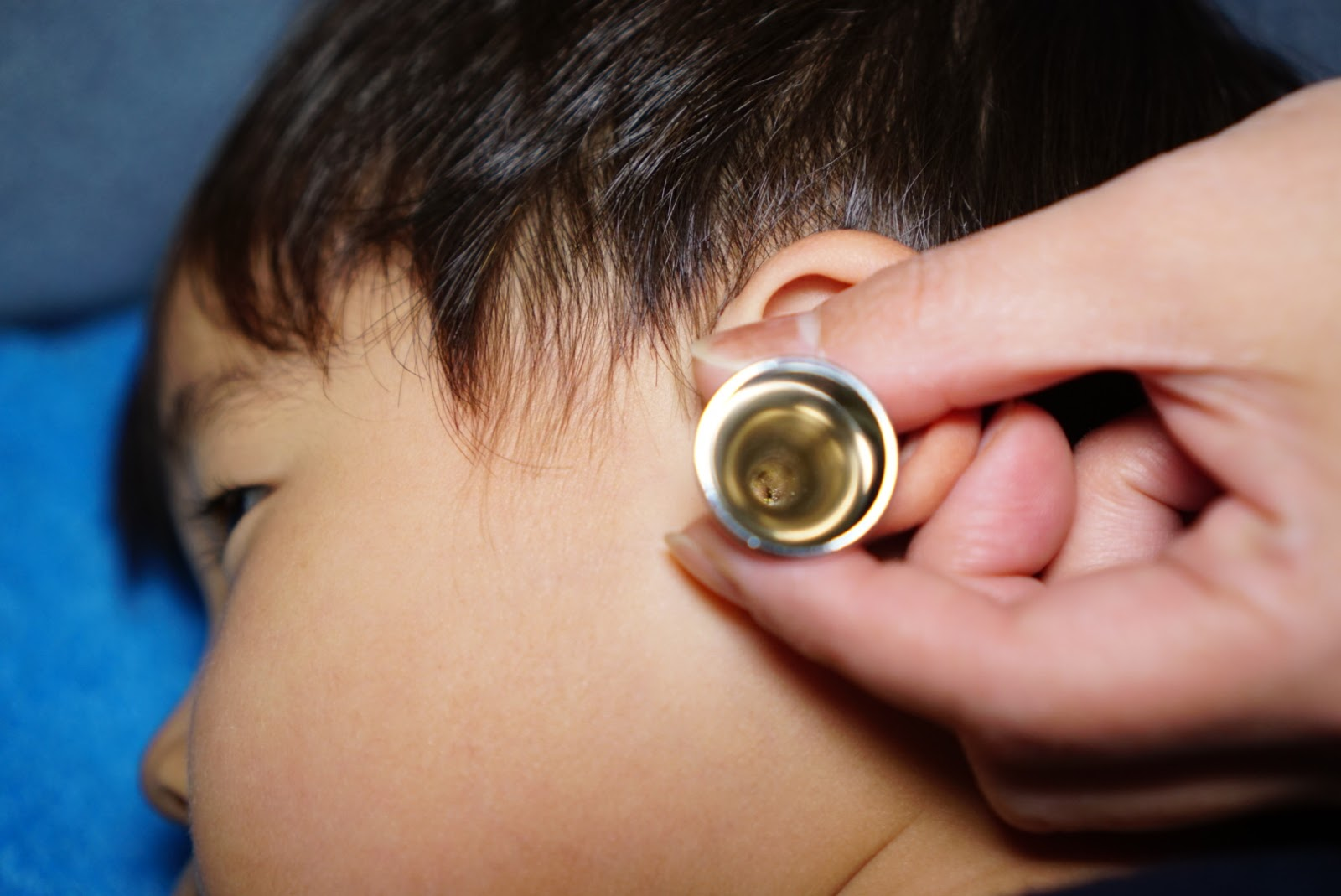 耳掃除 ピンセット コツ