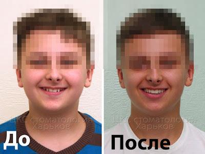 пациент до и после лечения брекетами