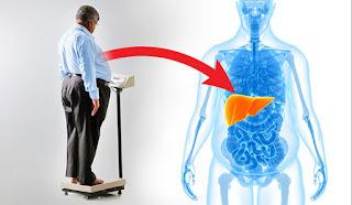 Béo phì liệu có bị bệnh gan nhiễm mỡ hay không ?