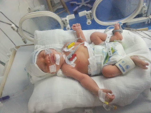 teknik penyusuan bayi pramatang prematur