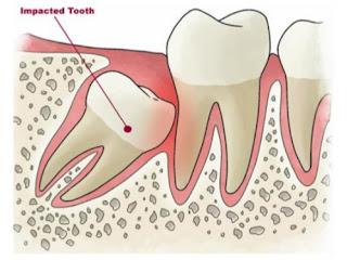 Trường hợp nào nên nhổ răng khôn ?