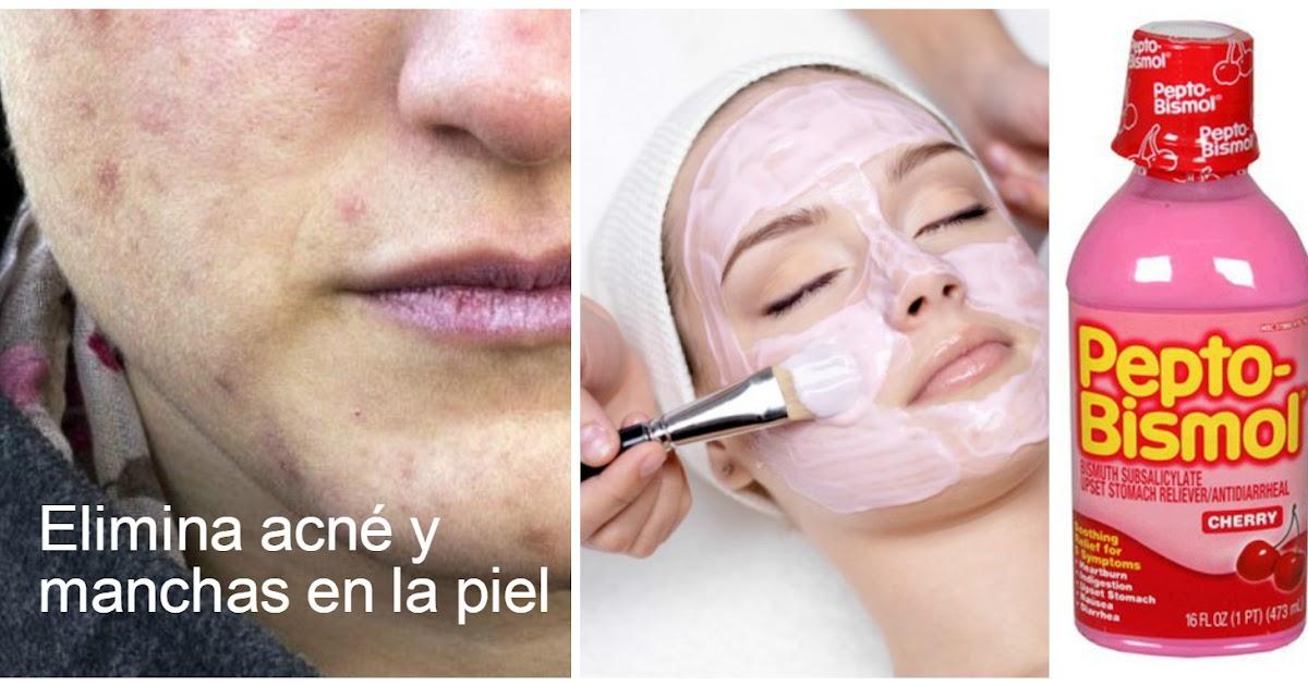 Elimina manchas y acn con mascarilla de pepto bismol for Manchas en la pared