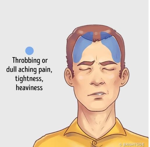 Inilah 10 Penyebab Muka Jerawatan Dan Mengatasinya: Sering Pusing? Ini 5 Macam Sakit Kepala Dan Cara Menanganinya