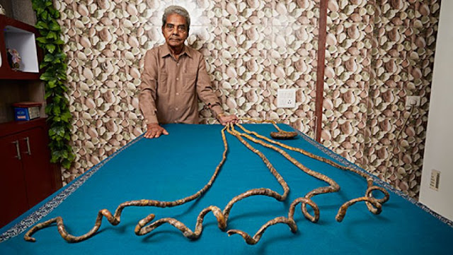 Shridhar Chillal world largest fingernail man from indai