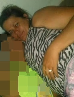 Mulher que sofreu acidente entre Jaçanã e Nova Floresta não resiste aos ferimentos e morre