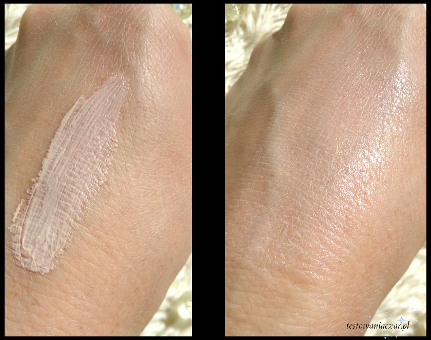 Linoderm Acne krem punktowy do skóry trądzikowej i łojotokowej