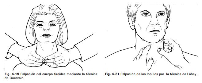 MANIOBRAS PARA PALMAR TIROIDES PDF DOWNLOAD