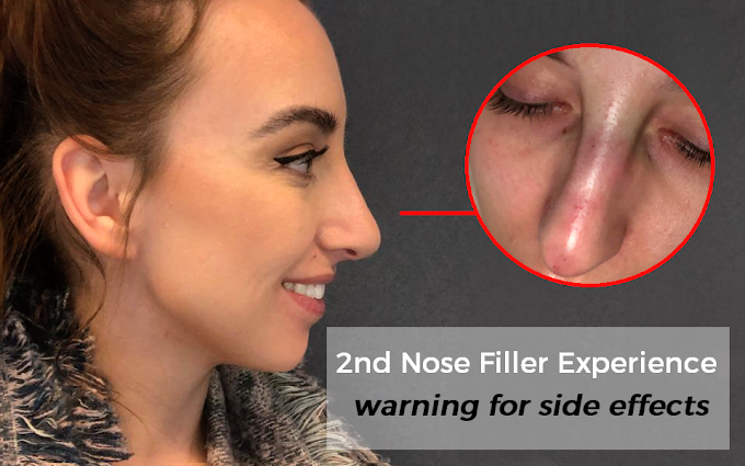 My 2nd Liquid Nosejob Experience + Side Effects Warning To Keep In Mind