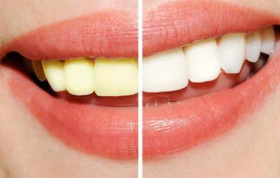 Phát hiện răng bị ố vàng nên tìm ra nguyên nhân chữa trị