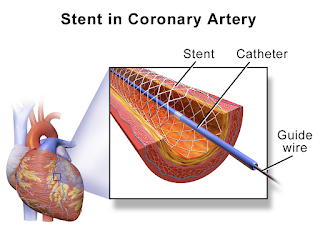 stent insertion and coronary artery