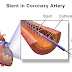 What is Angioplasty surgery: Stent insertion, Surgical process and Risks