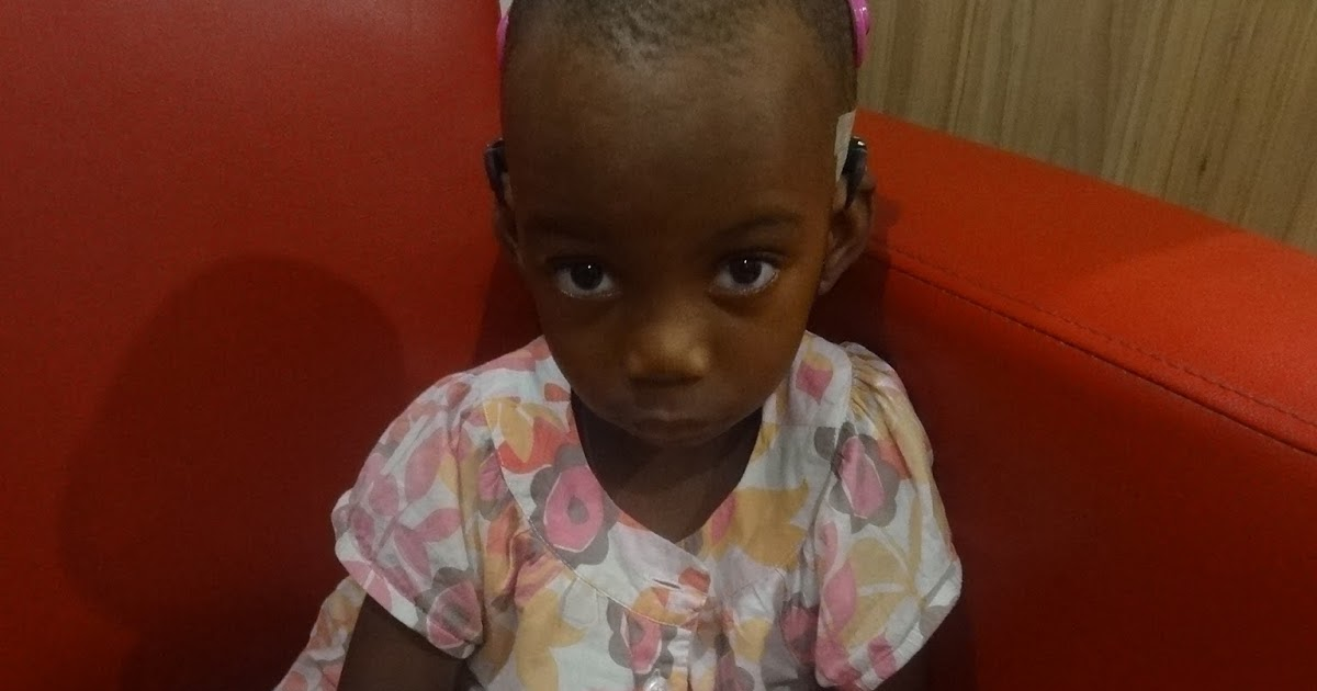 2 Year Old Tanzanian Child Gets Gift Of Hearing In India