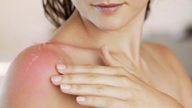 Home Remedies for a Sunburn