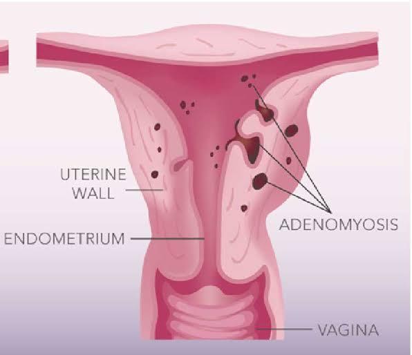 Apakah adenomiosis bisa disembuhkan