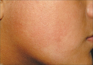 Ashy Dermatosis Pictures, Symptoms, Causes, Treatment