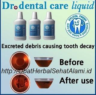 Merawat kesehatan gigi dan mulut dg Dr + dental care liquid