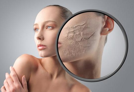 5 tips untuk selesaikan masalah kulit yang kering