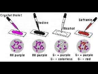 perubahan warna bakteri pada pewarnaan gram