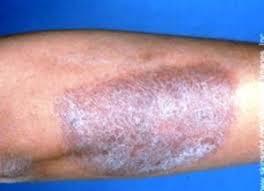 Obat Gatal Eksim ampuh di kaki kulit kering dan terkelupas