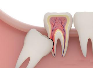 Giá nhổ răng khôn là bao nhiêu tiền ?