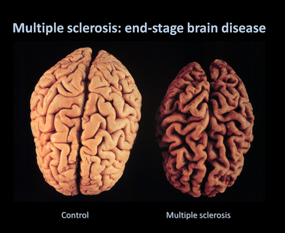 End Stages Multiple Sclerosis