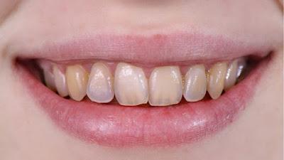 fluoride affecting the teeth