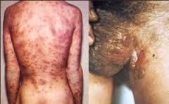 Cara Alami Pengobatan Penyakit Sipilis Pada pria