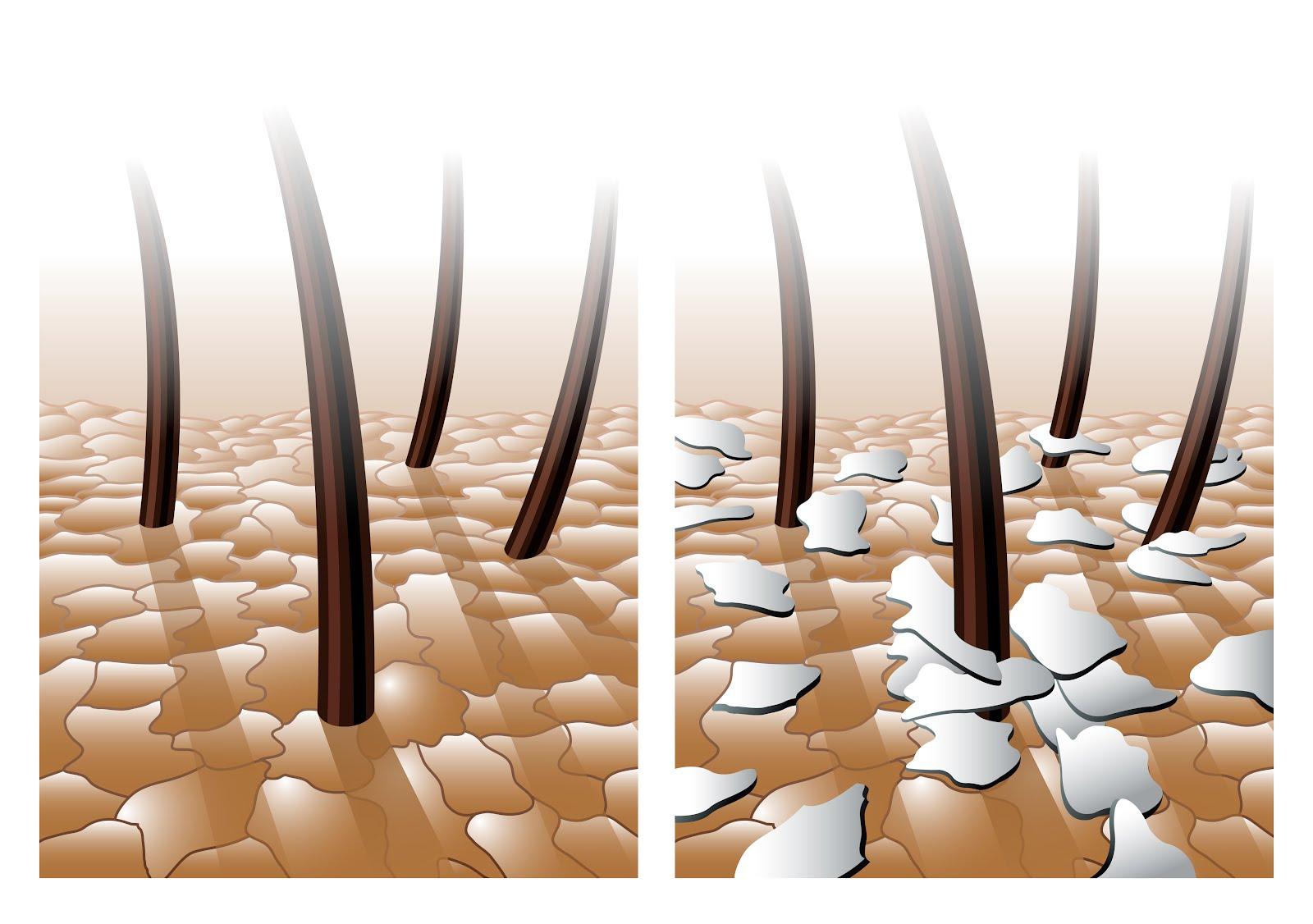 Elma Sirkesi İle Seboreik Dermatit Tedavisi Nasıl Yapılır