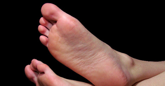 5 Amazing Natural Remedies to Cure Cracked Heels