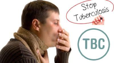 Cara Alami Mengobati Penyakit TBC Sampai Sembuh Total