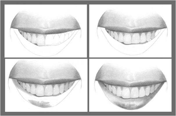 Karakalem ile ağız ve dişler nasıl çizilir adım 3