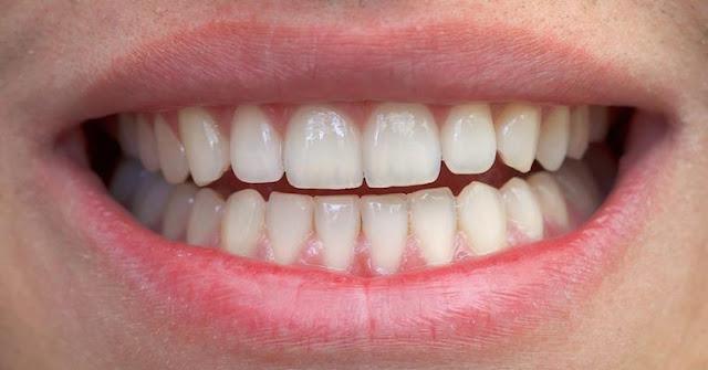 Dica incrível para remover o tártaro dos dentes