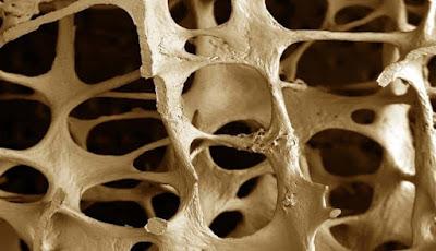 Atasi Tulang Keropos Dengan Menjaga Kesehatan Usus