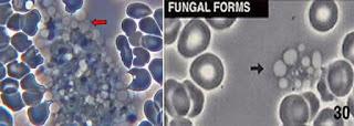 Ragi atau Fungus
