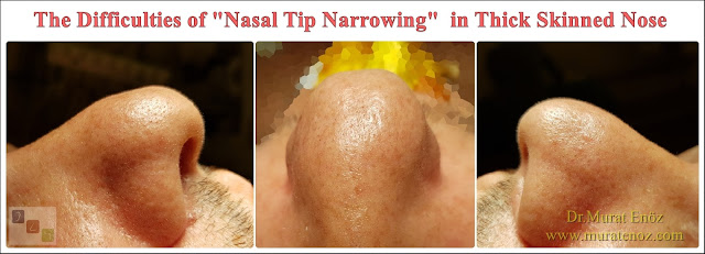 Nasal tip narrowing - Nose Tip Thinning - Shrink of bulbous nose tip - How to make smaller nose tip in thick skin patients? - Reduce to nose tip - How is thick nasal skin? - Thin skin with laser - How to understand a thick skin nose? - How about a thick skinned nose? - Bulbous nose - Thick skinned nose healing process - What does thick skinned nose mean? - Nasal tip narrowing in patients with thick nasal skin - Nose tip aesthetics in patients with thick skin